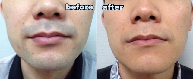 青髭の改善されて爽やかな印象
