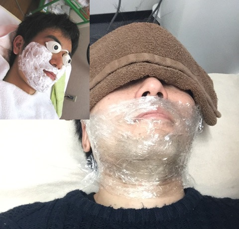 髭の麻酔クリーム