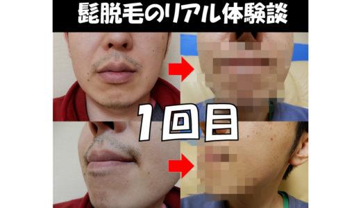 【髭脱毛:回数1回目の効果は!? 】ゴリラクリニック体験談