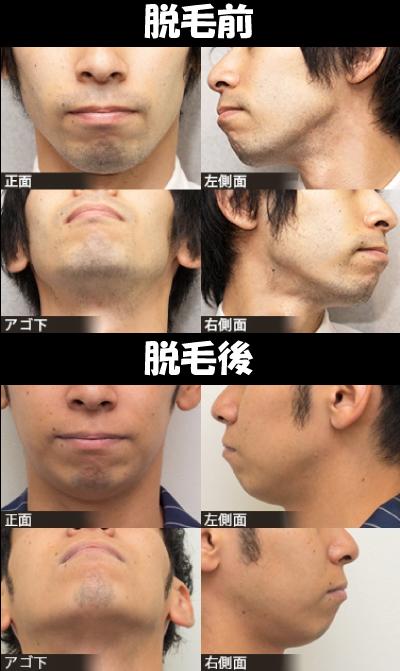 脱毛前後の比較1