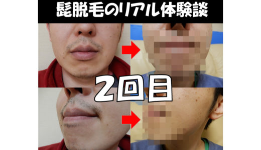 【髭脱毛体験談:2回目】メディオスターNeXTPROの脱毛効果はどれくらい?