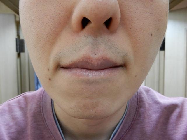 ヤグレーザー照射2ヶ月後の青髭